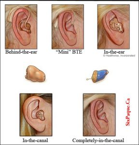 5 differance hearing aids